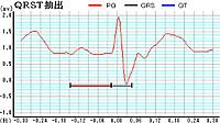0225_yukikaki_s_s_01