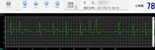 201700513_sinsitsu2dan